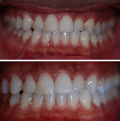 Alexandria Teeth Whitening | Richard T Stone DDS